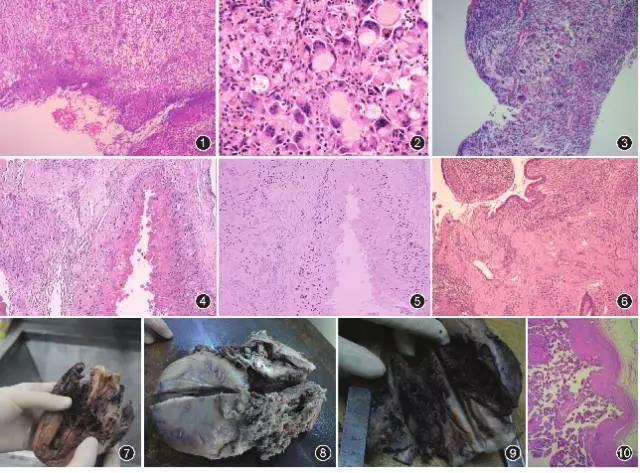 剖宫产后瘢痕部位相关病变临床及病理改变
