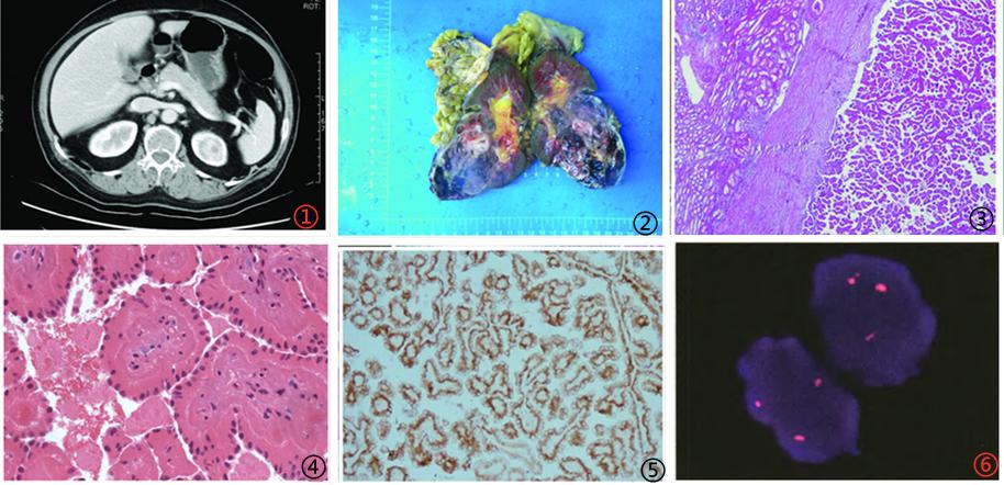 乳头状肾细胞癌罕见亚型简介