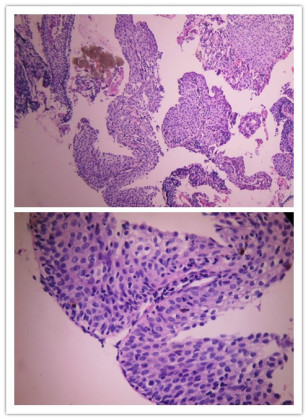 宫颈活检三例