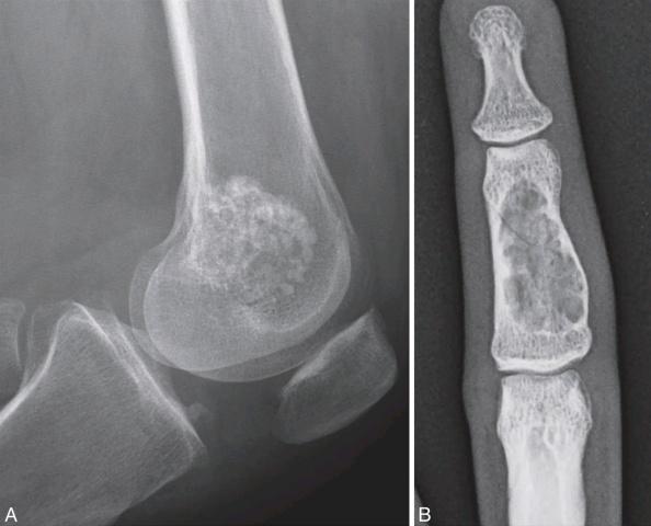 CAP文献学习-骨的软骨性病变(二)