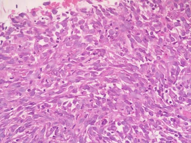 体表肉瘤肺转移?(札记六十五)