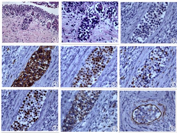 前列腺原发性血管内大B细胞淋巴瘤病例报告及文献复习