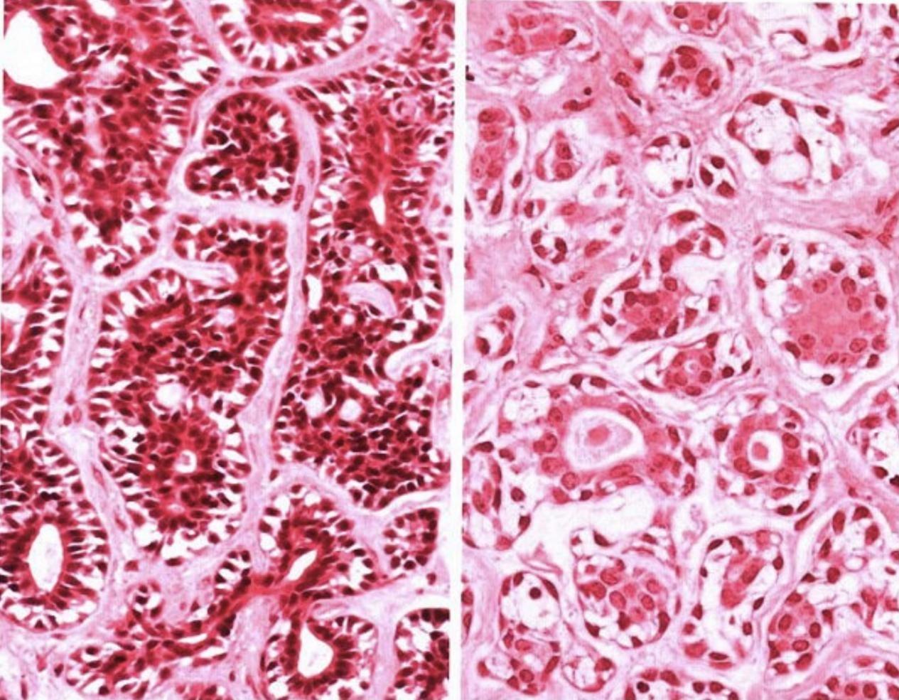 """从「多形性腺瘤」到「腺样囊性癌」:揭秘「涎腺肿瘤」的""""前世今生"""""""