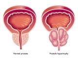 聚焦前列腺:病理零误诊(3)