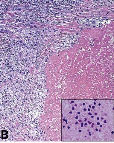 从精原细胞瘤形态学出发解读睾丸生殖细胞肿瘤(三)