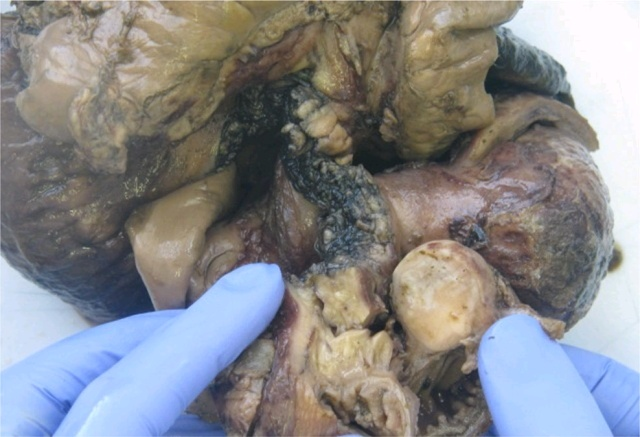 HIV阳性患者小肠同时发生弥漫性大B细胞淋巴瘤及EBV相关平滑肌肿瘤一例