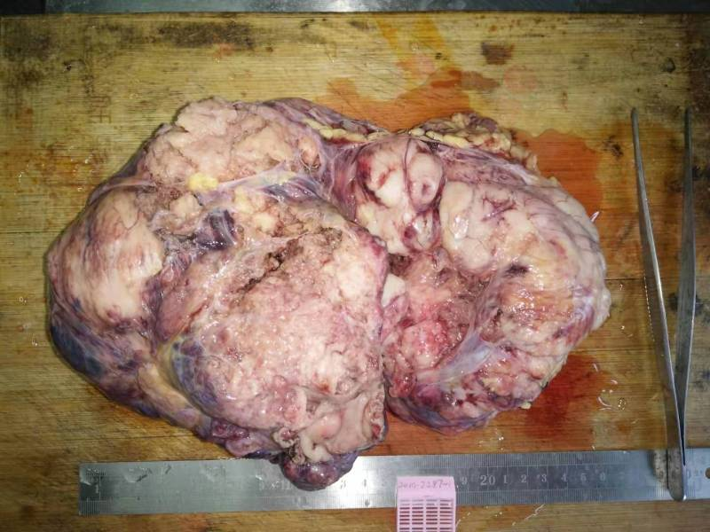 病理科工作札记(三十四)巨大胃肠间质瘤