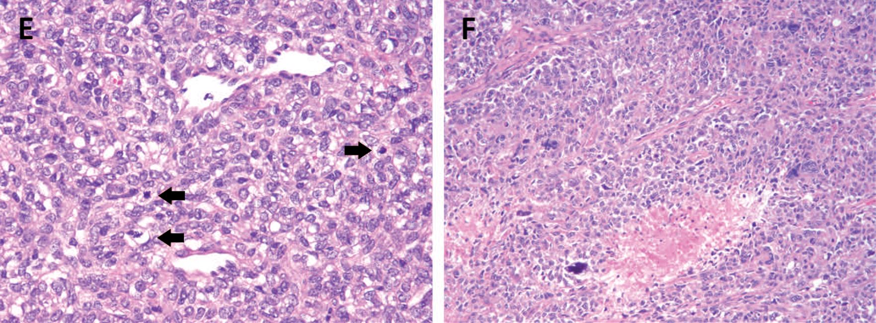 孤立性纤维性肿瘤-看这篇就够了(四)