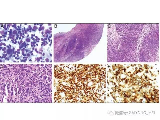 T细胞淋巴瘤病理诊断及进展(二)