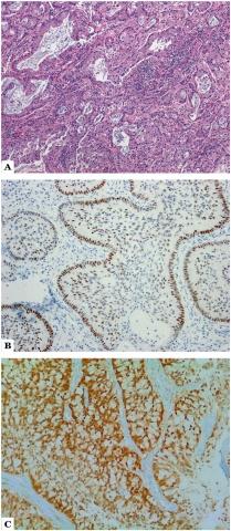 读一篇文献,学习一个病变-宫颈腺鳞癌