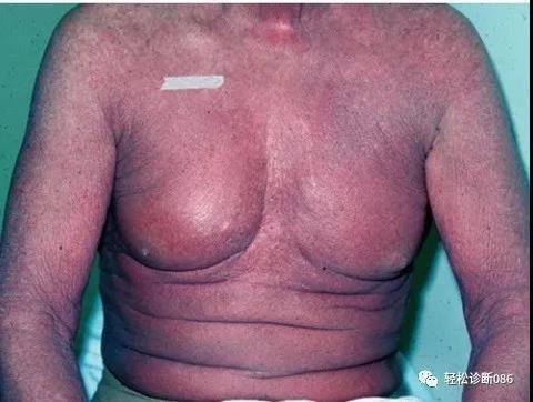 皮肤淋巴瘤(5)——T-NHL(MF/SS)