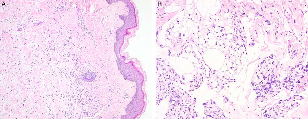 读文献,学病理-非典型多形性脂肪瘤样肿瘤