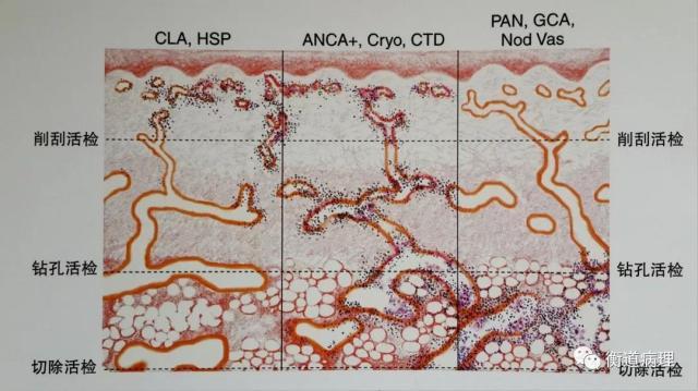 【衡道】皮肤组织病理学体系化课程学习笔记(三)
