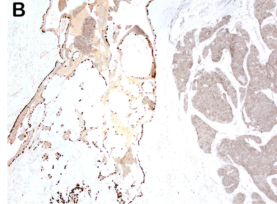 乳腺乳头状肿瘤概览(六)