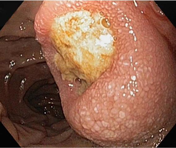 【投稿】一文梳理胃肠道继发性肿瘤临床特征