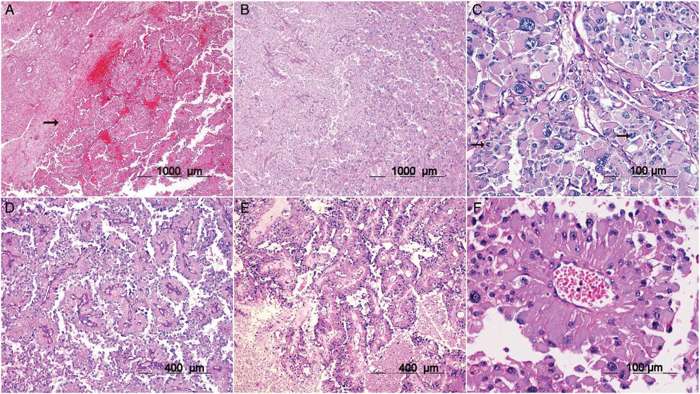 BRAFV600E突变肿瘤的临床病理学特征:从一个具有两种疾病形态的病例说起(1)