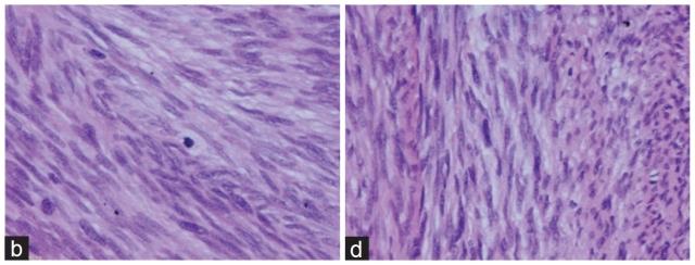发生于前列腺的胃肠道外胃肠道间质瘤一例