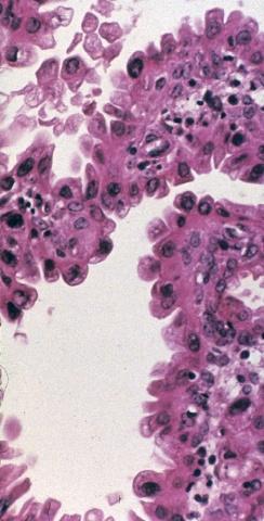 【投稿】子宫内膜小标本中类似恶性的良性病变(下)