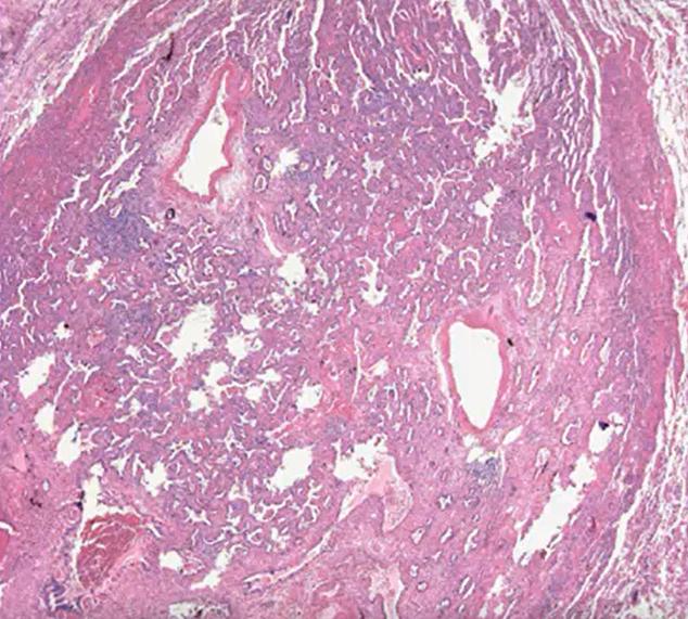 第八版肺癌TNM分期对病理报告的要求