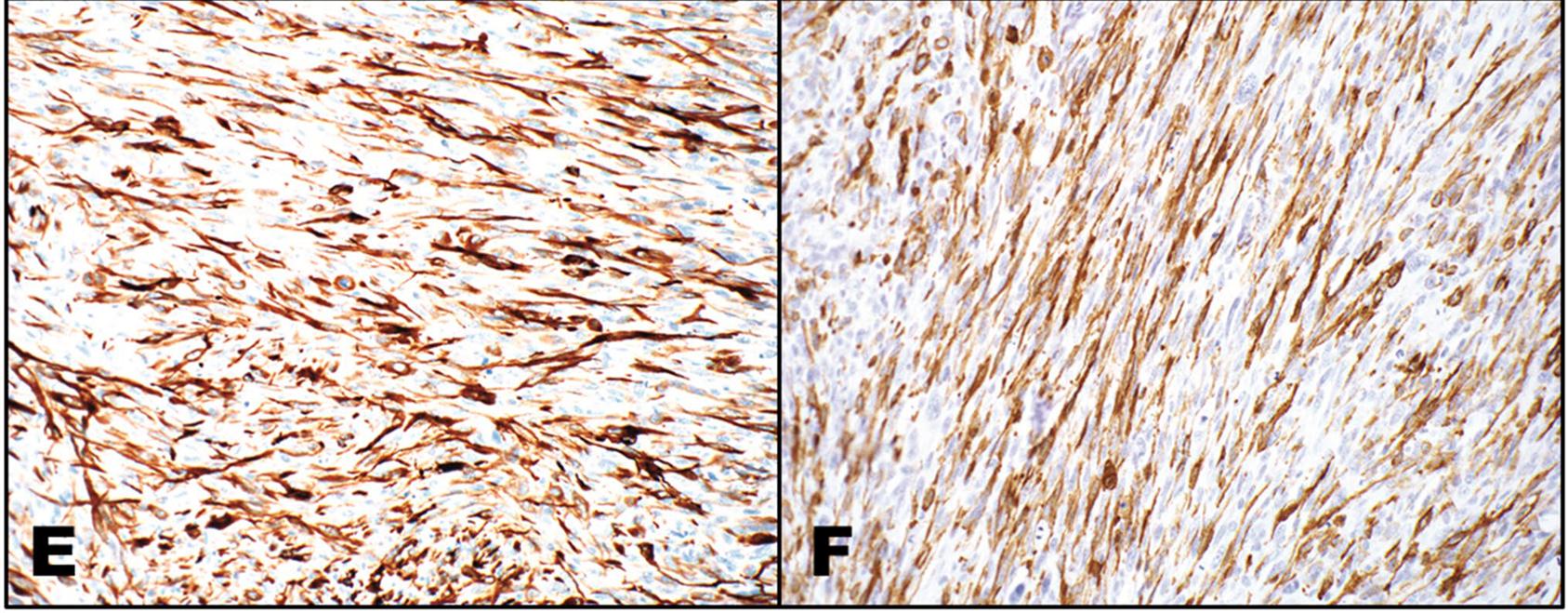 以例学病-喉部梭形细胞鳞癌病理诊断要点(一)