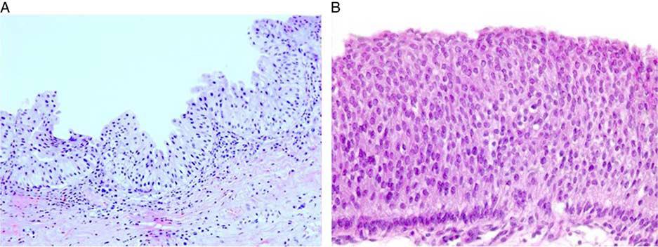最新文献学习-泌尿生殖病理学会对某些问题的重要更新(七)