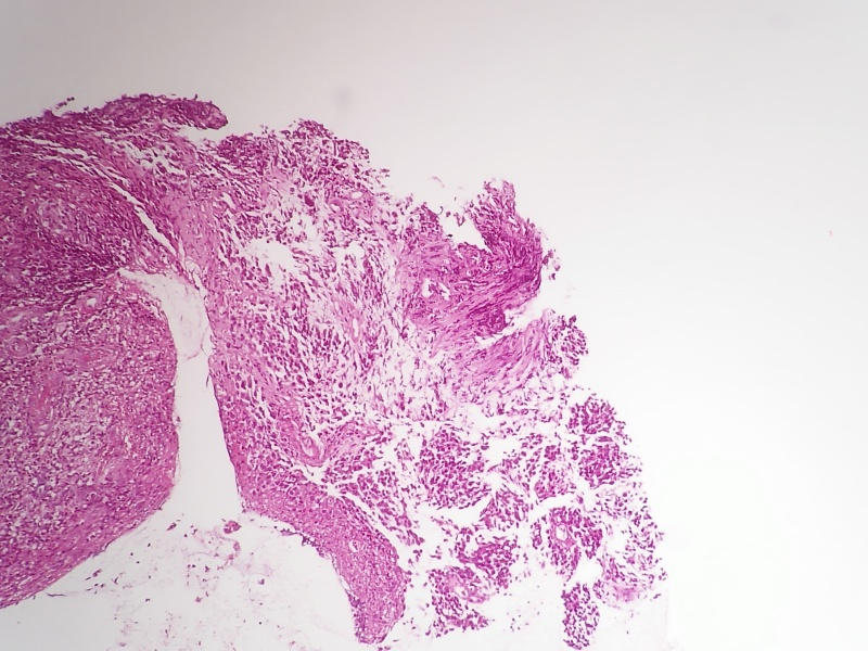 病理科工作札记(三十九)肛缘恶性黑色素瘤