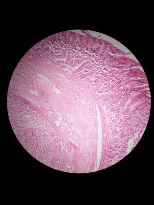 病理科工作札记(十七)胃间质瘤