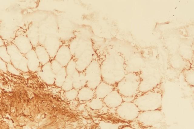 综述:先天性巨结肠的诊断