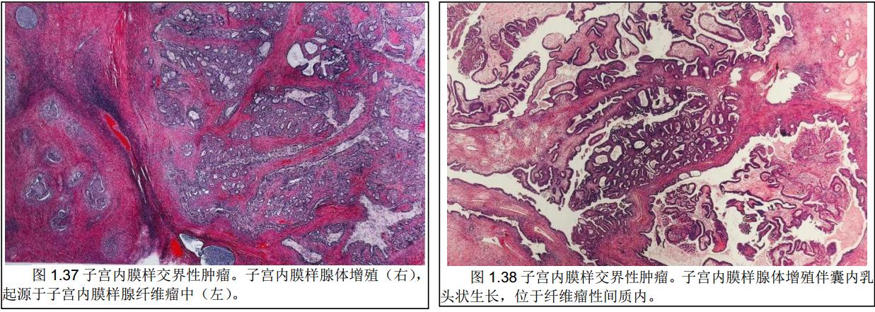 WHO肿瘤分类第5版-女性生殖学习笔记8 卵巢子宫内膜样肿瘤