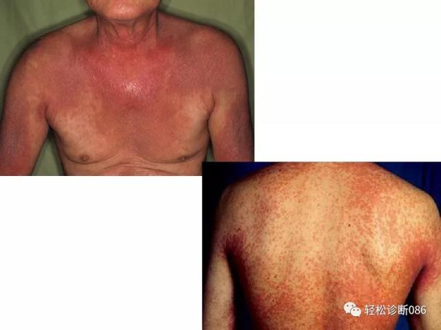 皮肤T细胞淋巴瘤