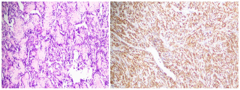 文献快讯-NKX3.1可用于间叶性软骨肉瘤诊断