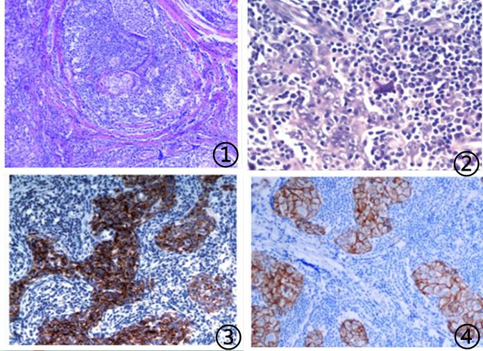 原发性乳腺淋巴上皮瘤样癌临床病理学特征