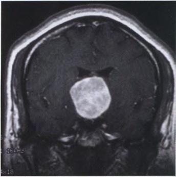 第三脑室脊索样胶质瘤的临床病理学特征