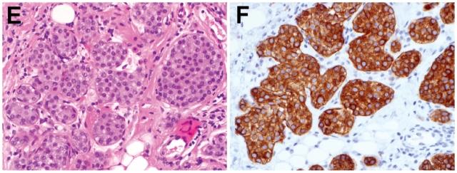 说说乳腺小叶原位癌-(二)免疫组化