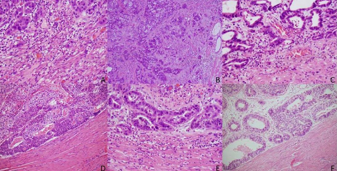 内蒙古系列讲座(十三):肿瘤出芽(tumor budding)在胃肠道癌中的应用