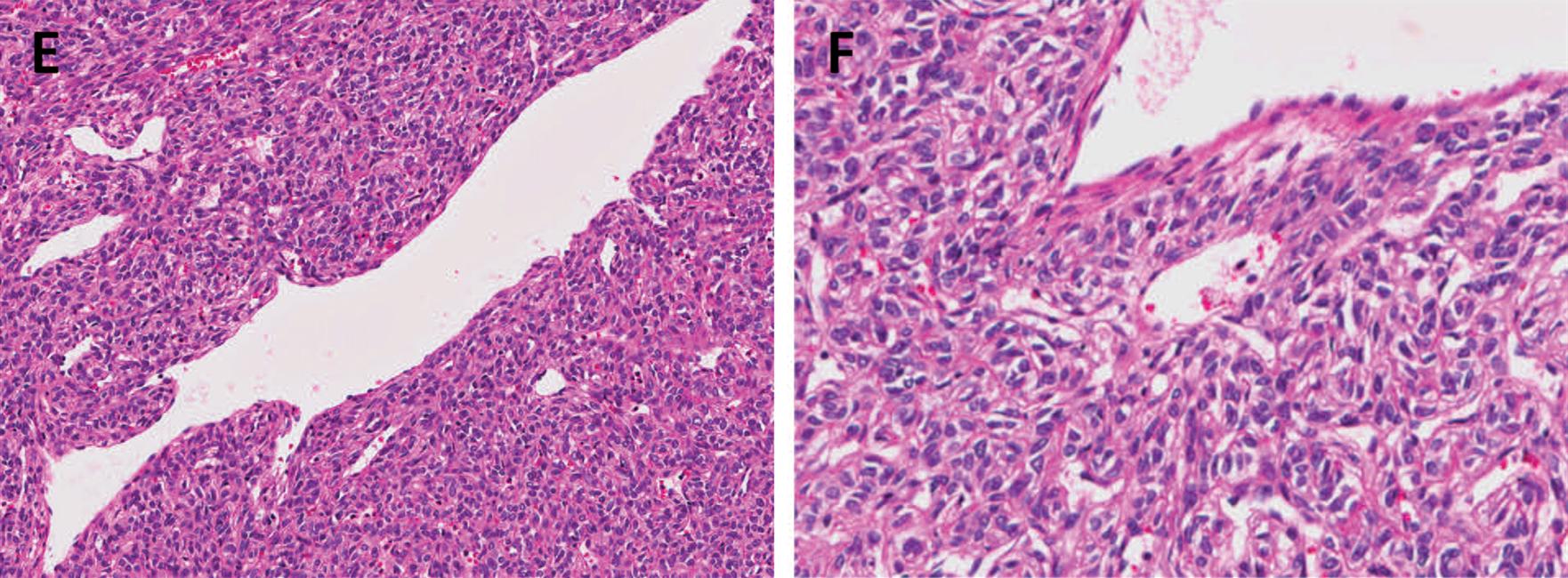 孤立性纤维性肿瘤-看这篇就够了(二)