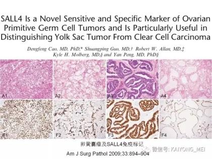 卵巢癌的病理诊断新进展(三)