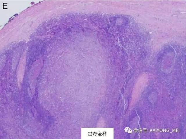 T细胞淋巴瘤病理诊断及进展(一)