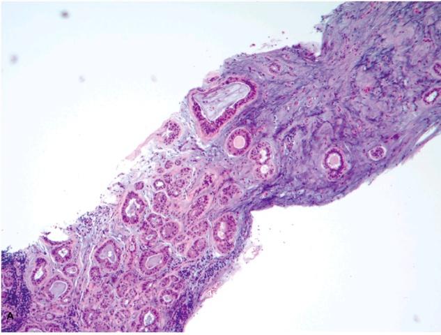 小标本、大风险-部分乳腺病变粗针穿刺活检诊断要点(六)