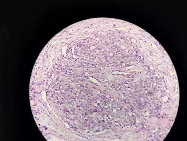 案例 | kaposi型血管内皮瘤,当大体检查与镜下图像不符时……