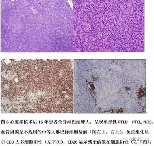 免疫缺陷相关性淋巴组织增殖性疾病(7)