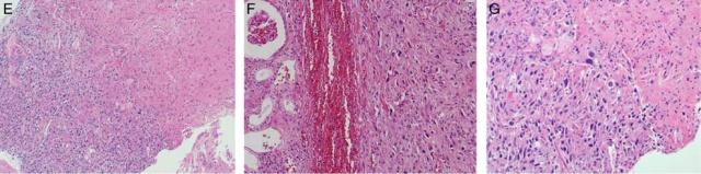 当肾细胞癌转移到脑