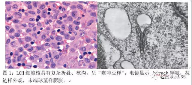 组织细胞起源疾病(3)——肿瘤性病变(LCH)