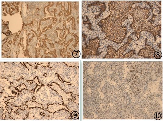 硬化性肺细胞瘤临床病理学特征