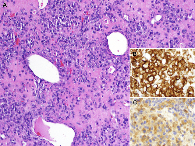 【投稿】从免疫组化入手梳理鼻腔鼻窦小圆细胞肿瘤诊断(下)