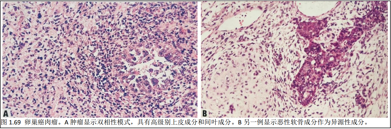 WHO肿瘤分类第5版-女性生殖学习笔记9 卵巢其他上皮性肿瘤