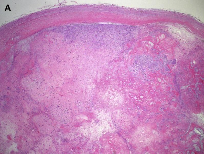 上皮样神经鞘瘤临床病理学特征