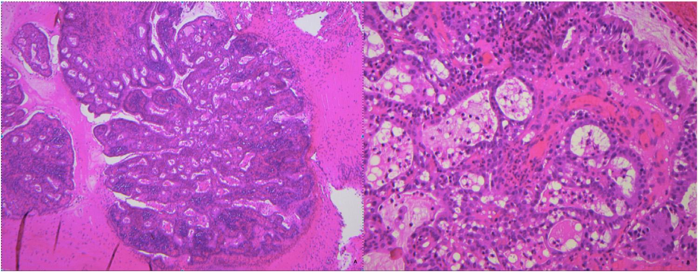 以例示病-宫颈管微腺体增生
