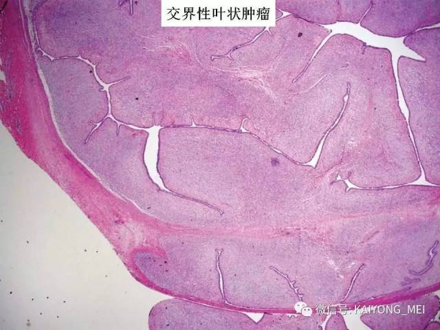 乳腺梭形细胞病变的病理诊断及进展(二)