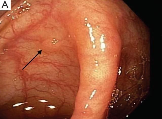 表现为结肠小息肉的转移性肺腺癌一例